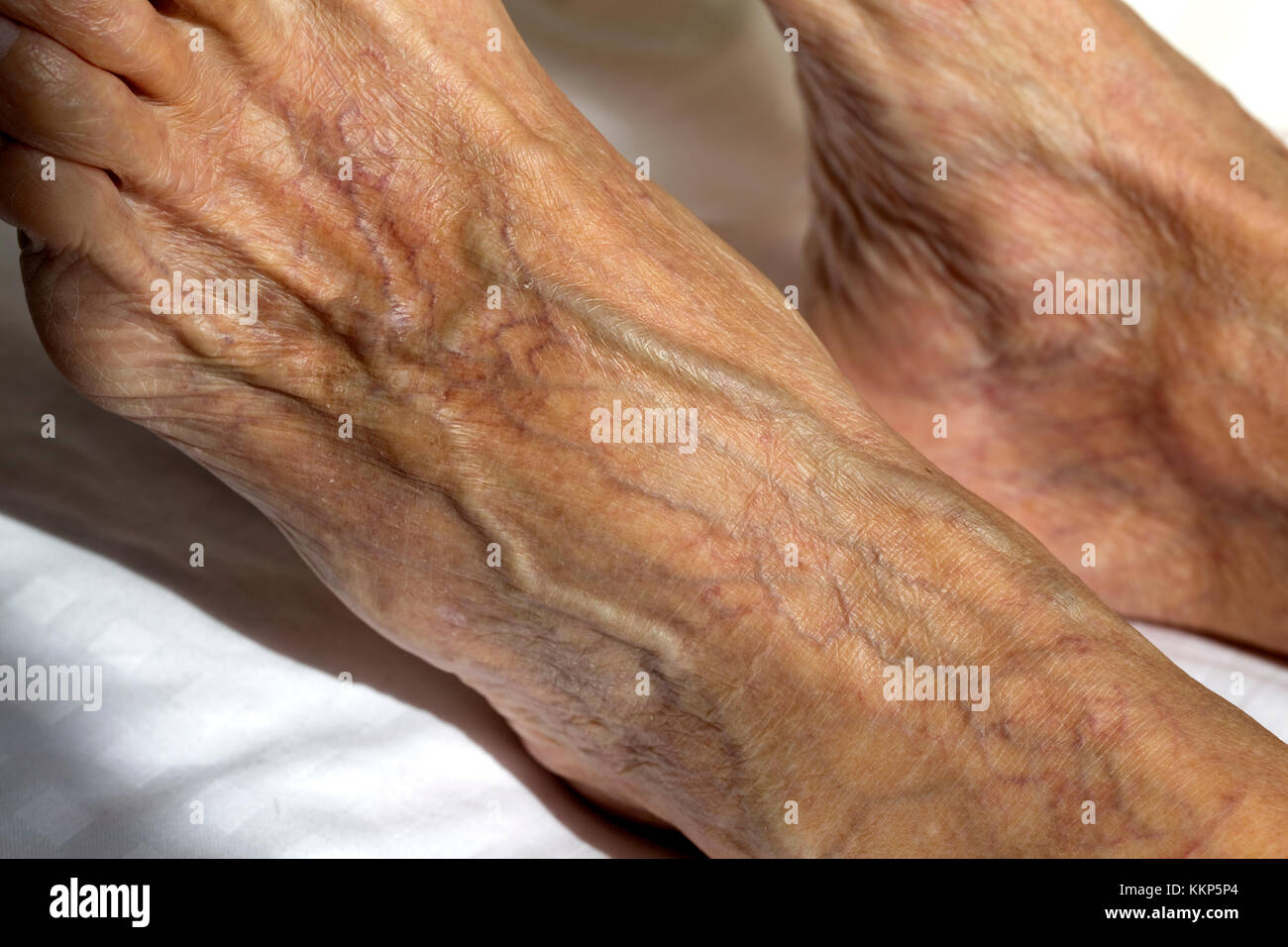 Enlarged Swollen Varicose And Spider Veins In Foot Of Elderly Woman