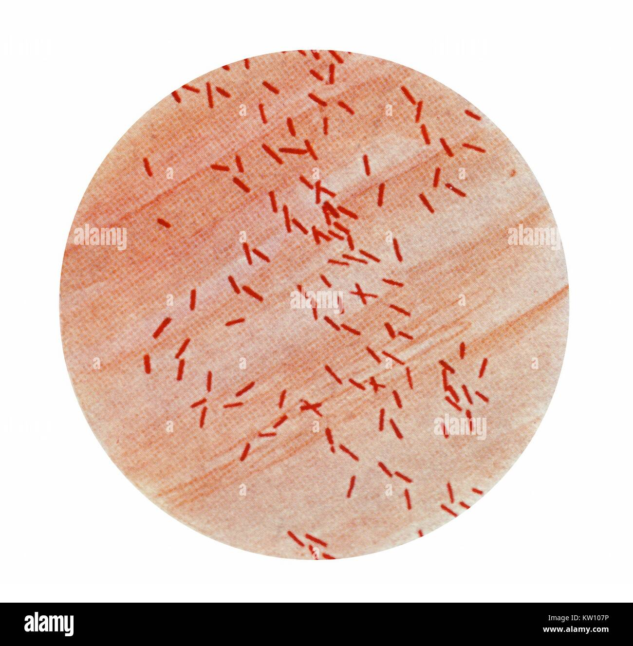 how to make a gram stain