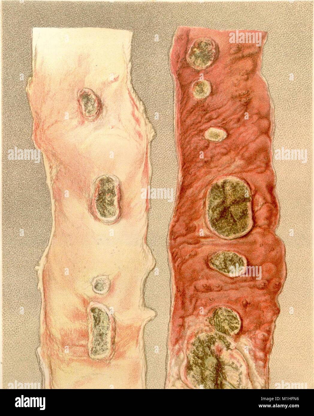 Color illustration depicting Typhoid induced ulcerated fever patches on a patient's ileum, from the volume 'The - Stock Image