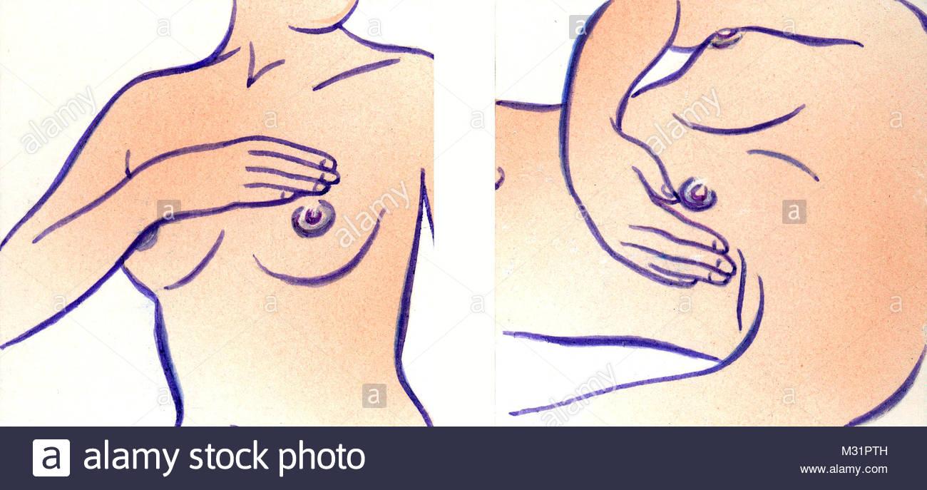 Self-examination breast examination Part 1 - Stock Image