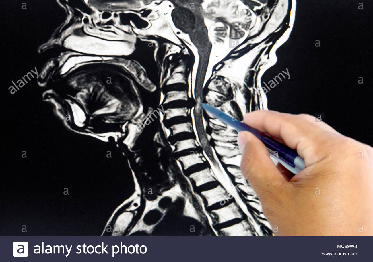 Lateral position cervical spine MRI, technical x-ray, with the spine ...