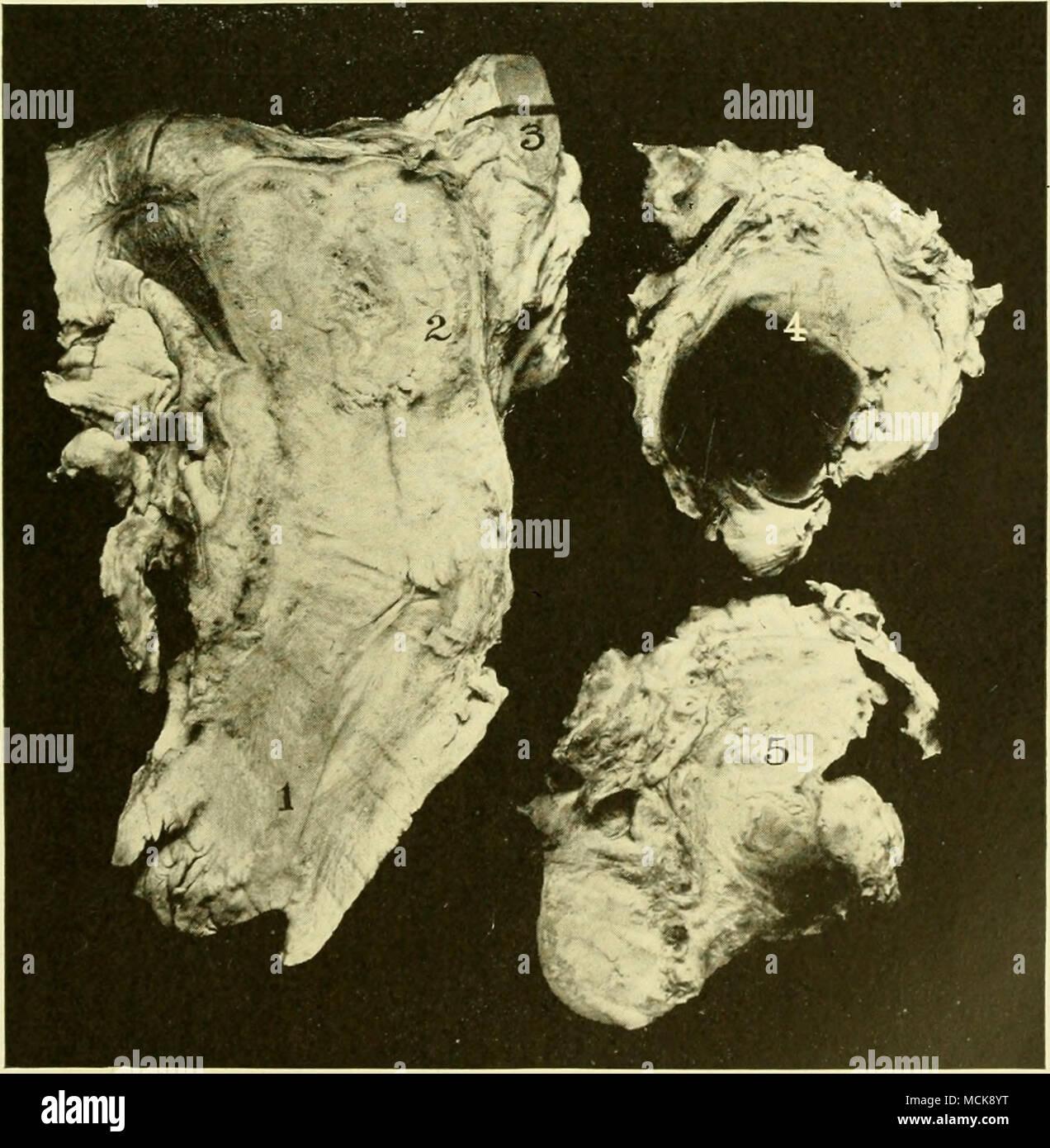 Ovarian abscess 75