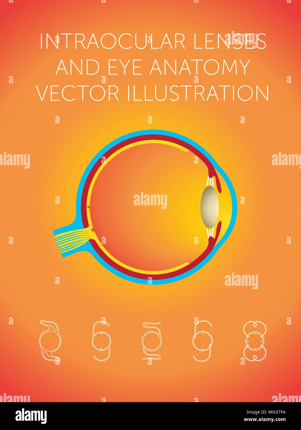 Schematic structure of eye and types of intraocular lenses on orange ...