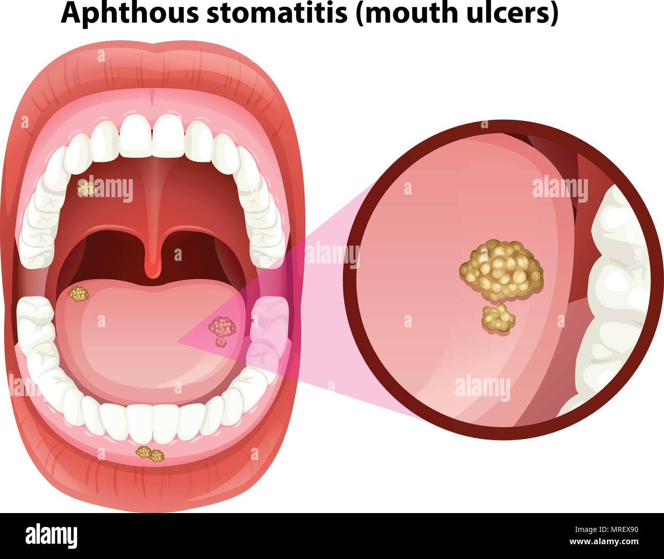 Human Mouth Anatomy Of Ulcers Illustration Stock Vector Art