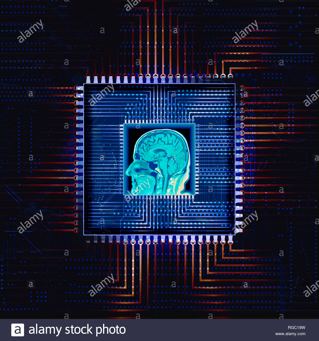 MRI Magnetic resonance imaging medical imaging technique radiology scan of a human head Stock Photo