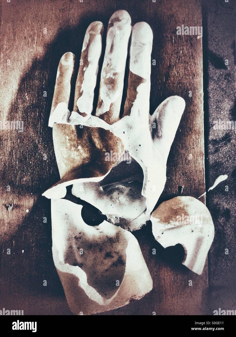Broken Hand - Stock Image
