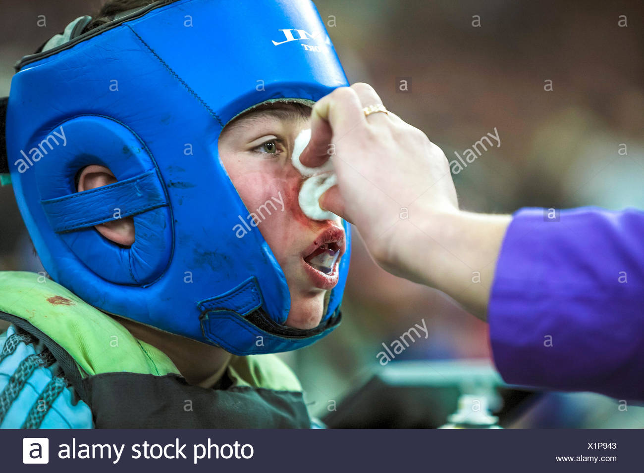 Caring For A Child's Bloody Nose After A Taekwondo Match - Stock Image