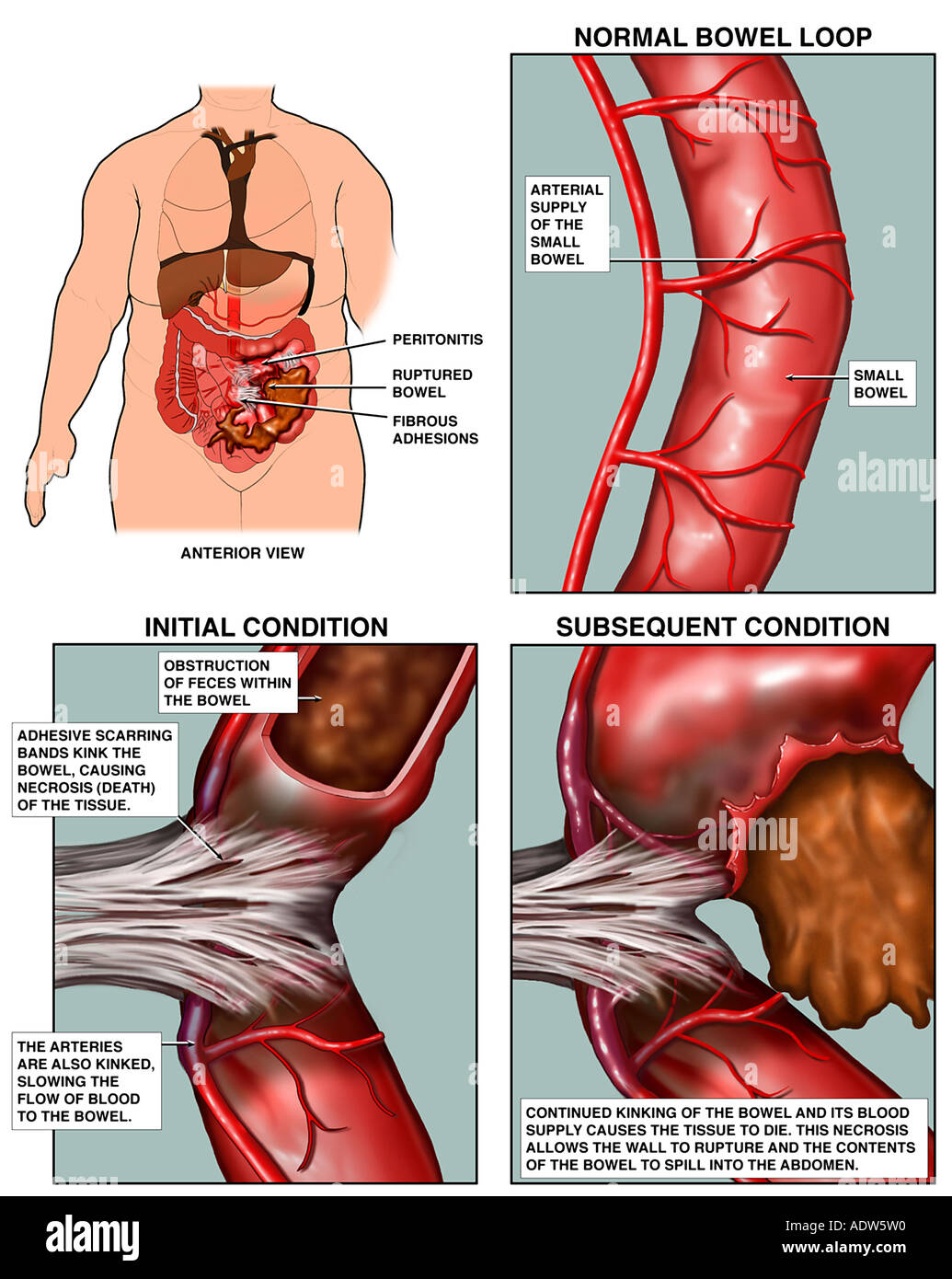 intestinal obstruction Small bowel obstruction (sbo) is a common clinical syndrome for which effective treatment depends on a rapid and accurate diagnosis despite advances in imaging and a better understanding of.