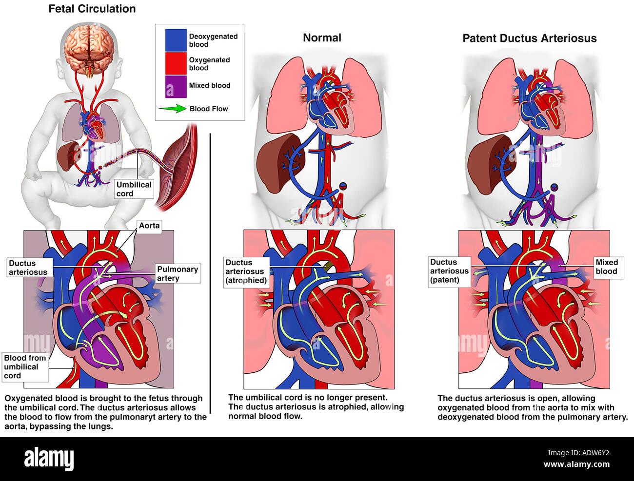 Congenital Heart Disease Explained