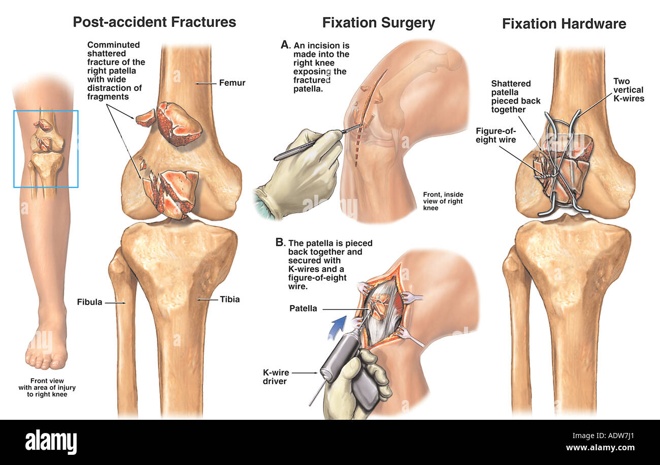 Stock Photo Knee Injury  minuted Patellar Fractures With Fixation Surgery Of 7712352