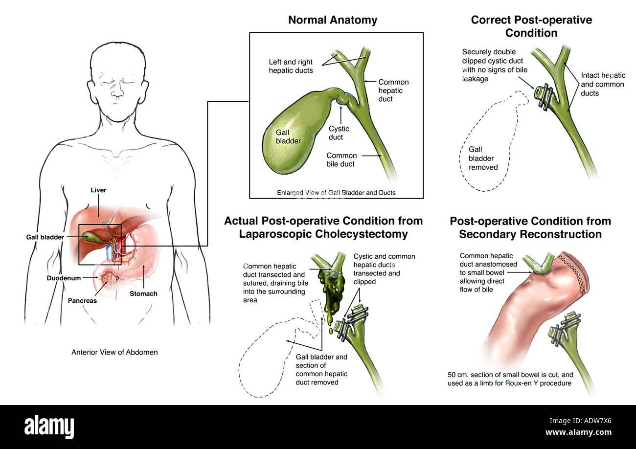 Laparoscopic Cholecystectomy Gallbladder Removal Surgery ...