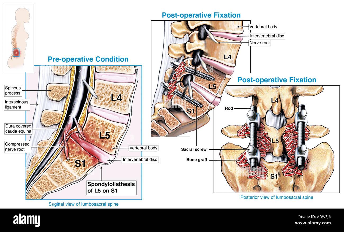 spinal spondylothesis Understanding degenerative spondylolisthesis article written by alok sharan, md the spine is comprised of 30 bony segments or vertebrae 24 of these vertebrae are.