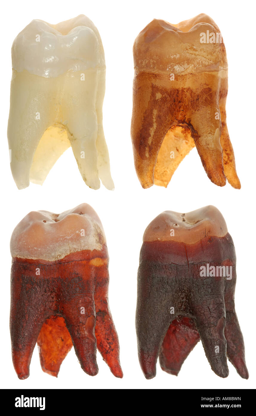 Four photos of a wisdom tooth showing how it looks before and after being soaked in a cola for a day, a week and Stock Photo