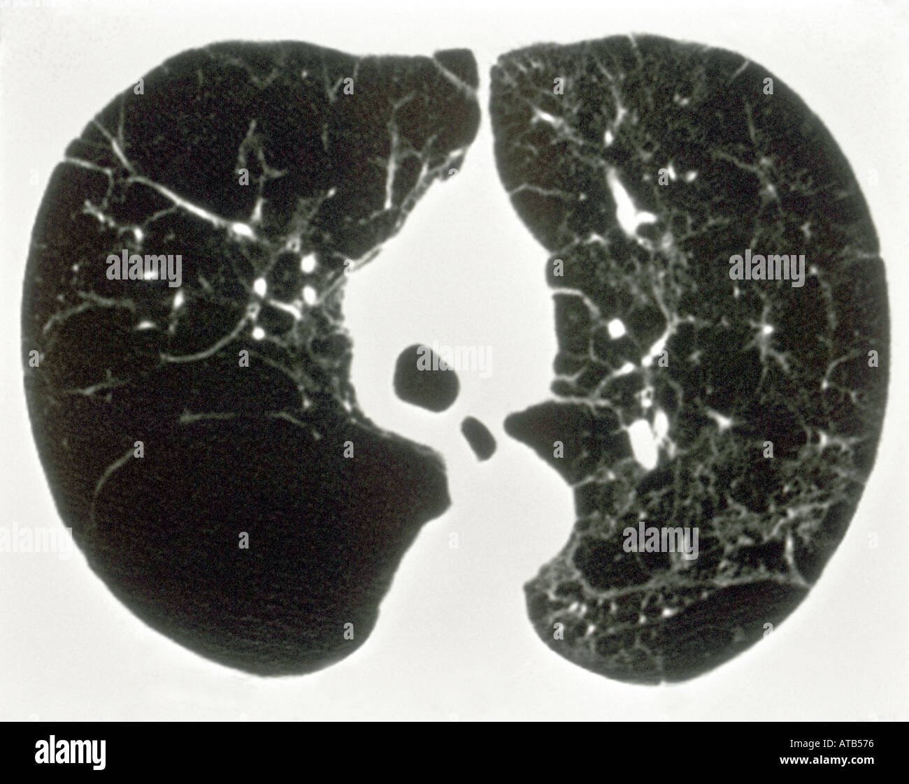 chest ct scan emphysema stock photo  1684853