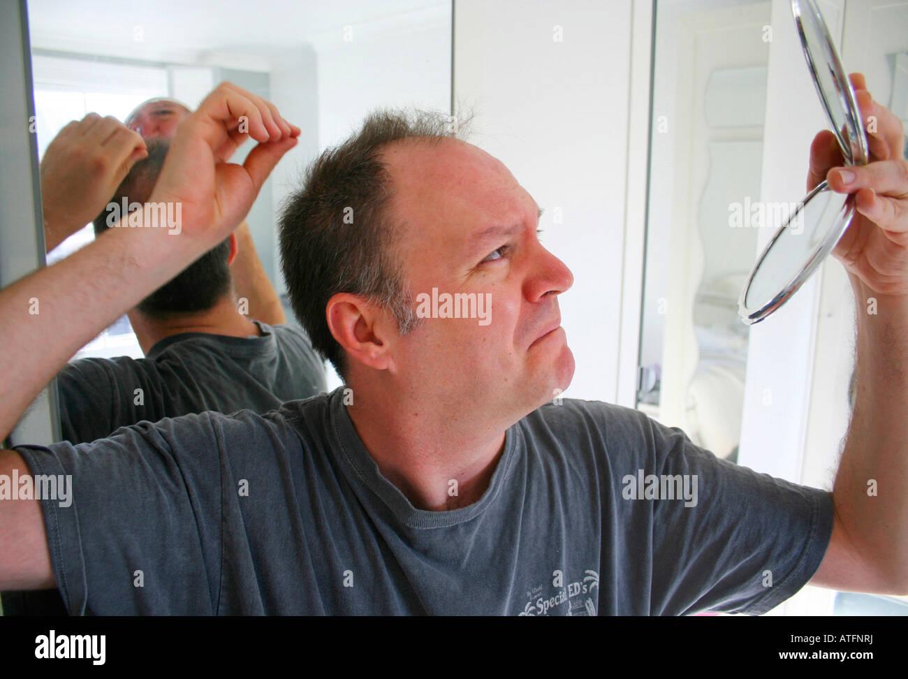 man-checking-his-thinning-hair-ATFNRJ.jp