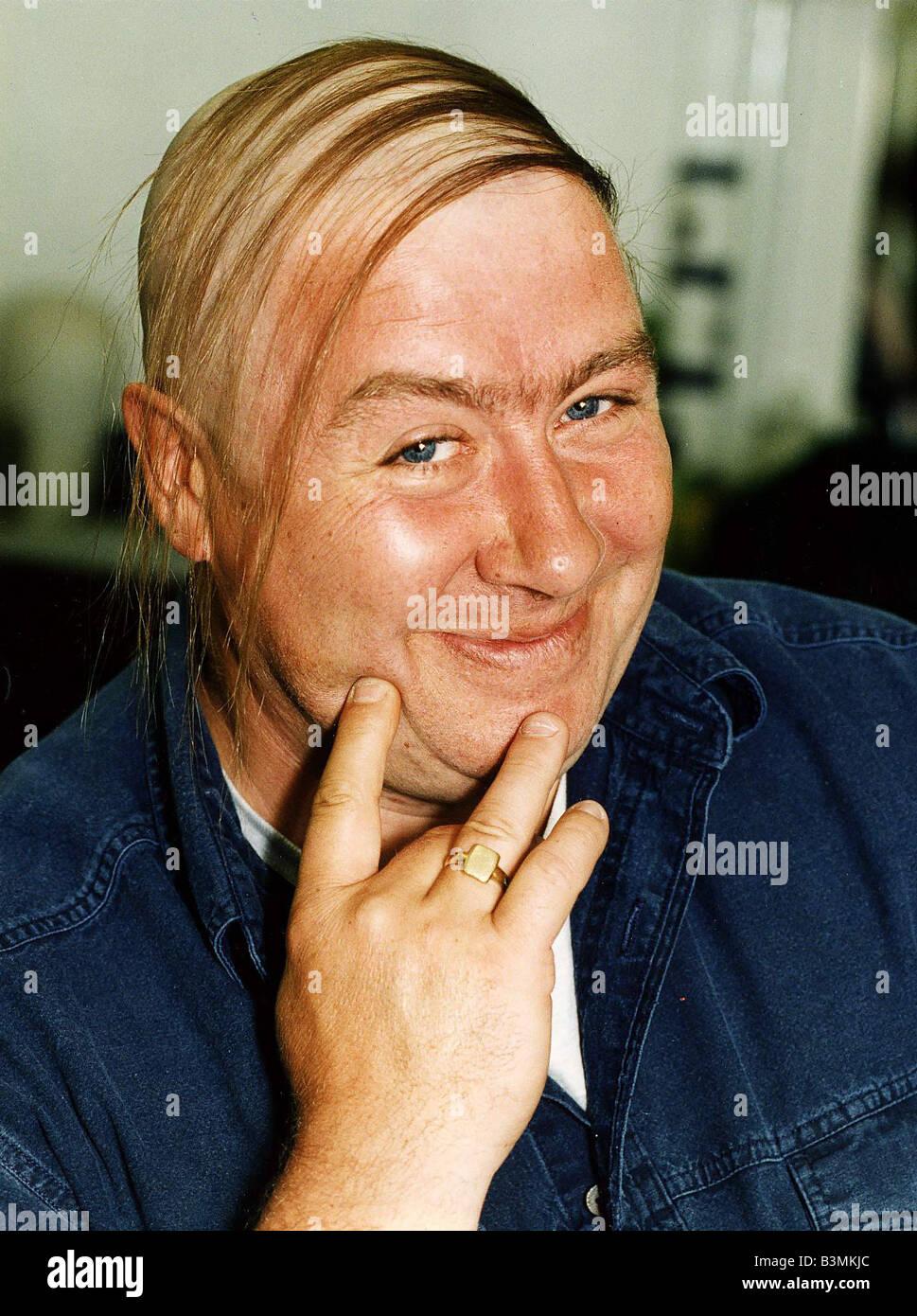 Прически у лысеющих мужчин фото