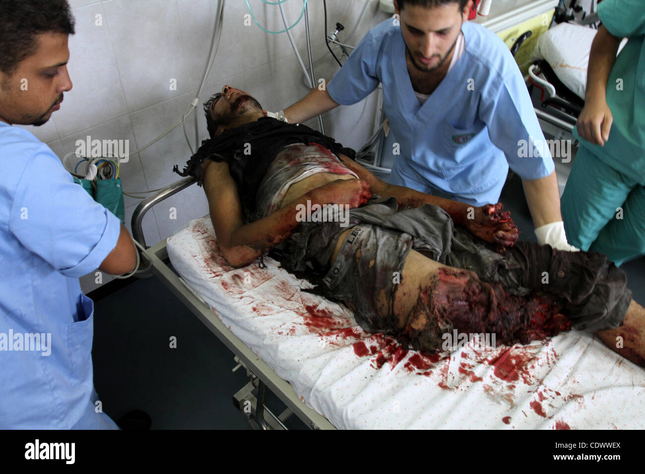 palestinian doctors rush a wounded man into al shifa hospital in gaza stock photo royalty free. Black Bedroom Furniture Sets. Home Design Ideas