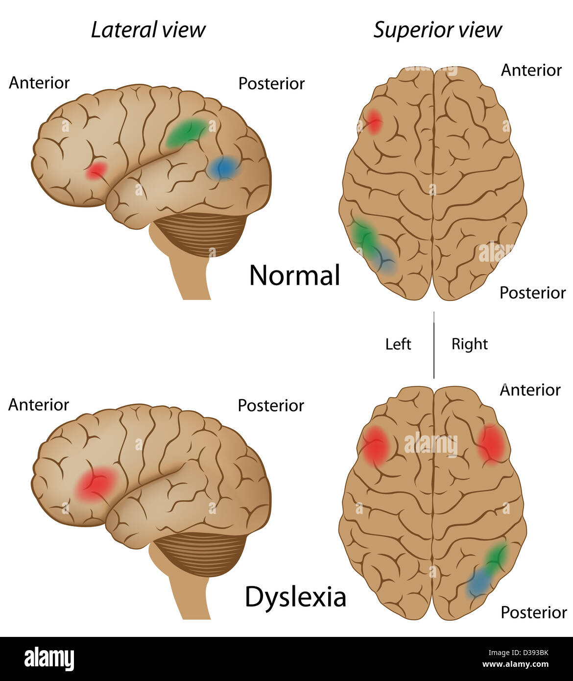 an account of the central area of the brain associated with language Researchers at ucla report that the language areas of the brain seem to go through the most dynamic period of growth between the ages of 6 and 13 about brain connection although the brain accounts for only 2% of the whole body's mass.