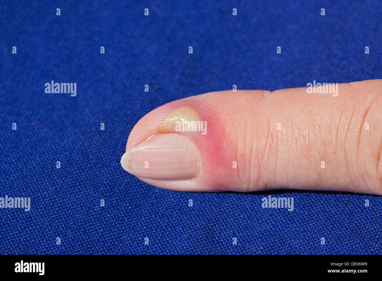 Bacterial infection, inflammation, index finger, pus, abscess Stock Photo