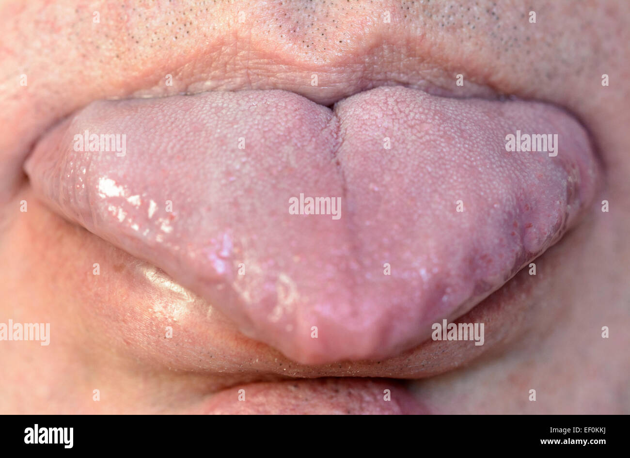 tongue-sticking-out-front-view-of-a-caucasian-male-with-his-tongue-EF0KKJ.jpg