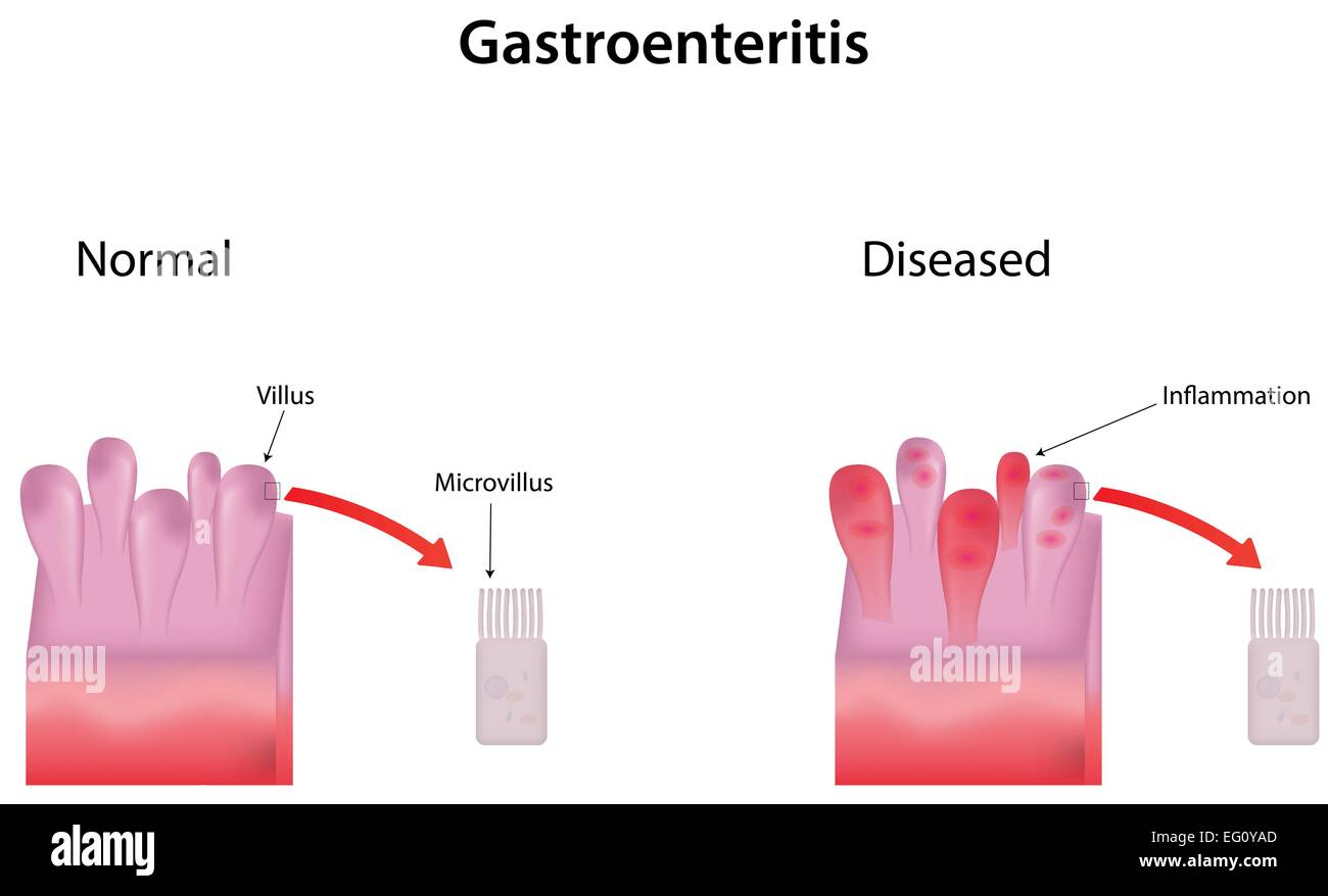 Gastroenteritis Diagram Stock Vector Art & Illustration ...
