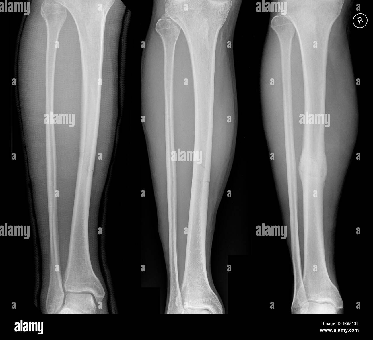 Sequence showing an uncomplicated fracture of tibia ...