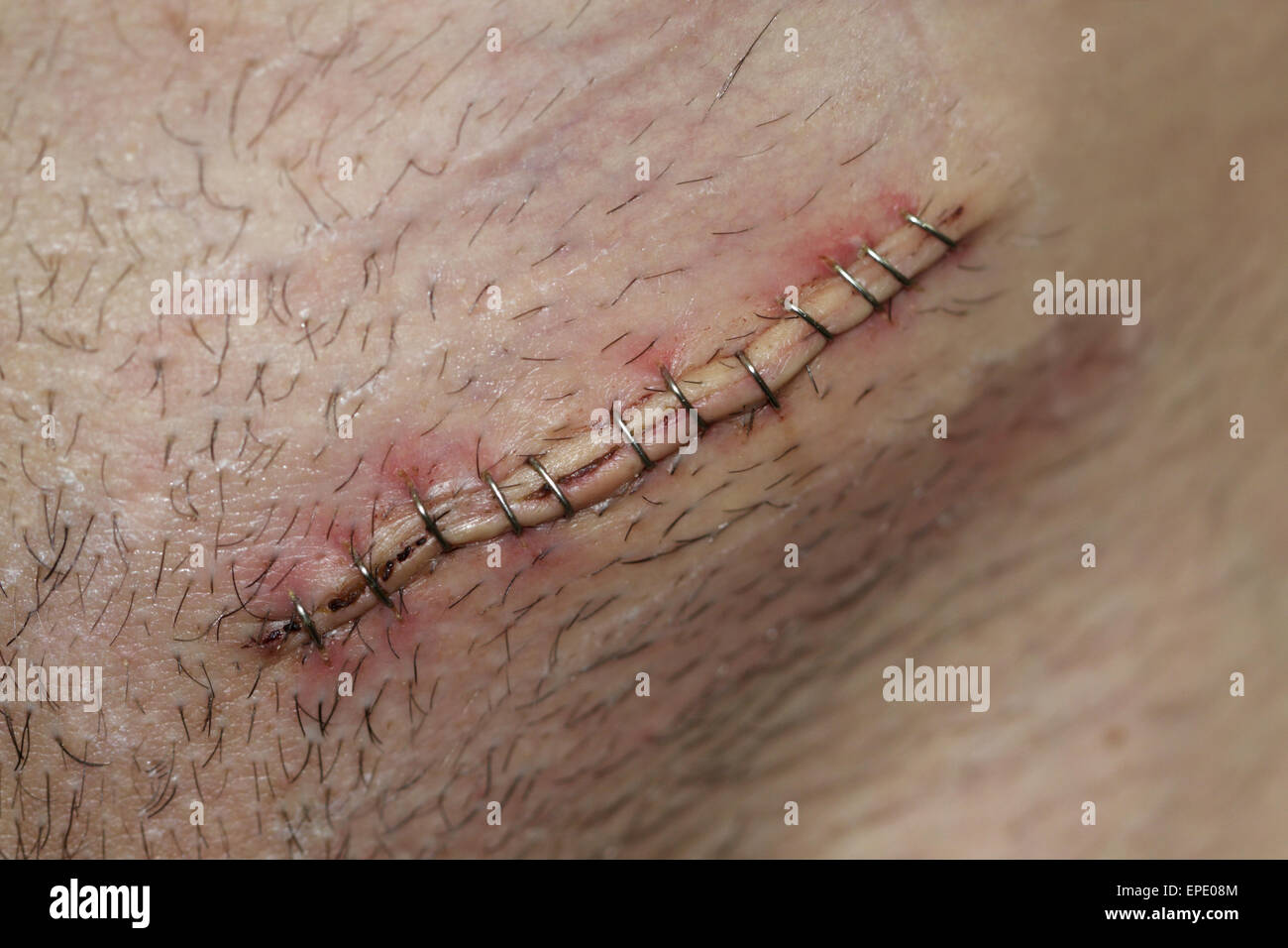 Postoperative inguinal hernia surgical incision Stock ...