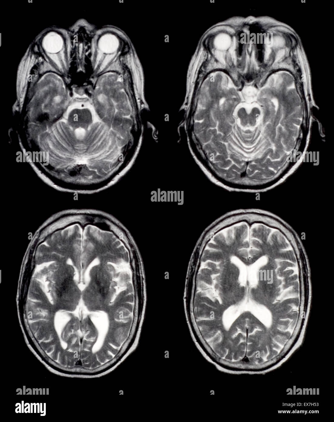 axial brain mri images of a normal 65 year old woman stock