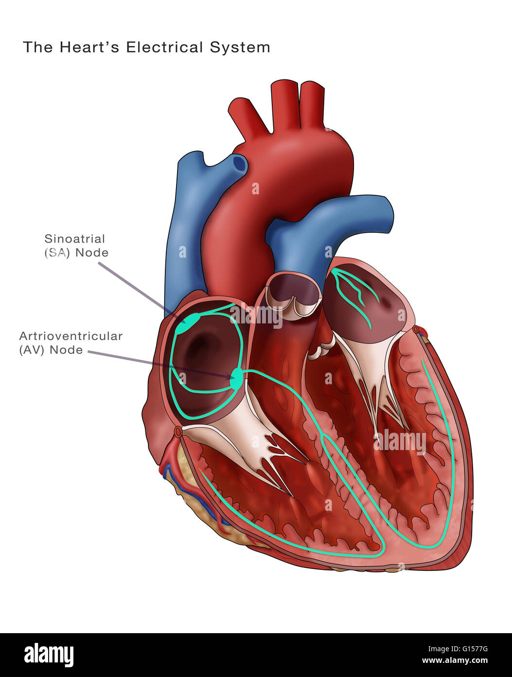 Illustration depicting the heart's electrical system ...