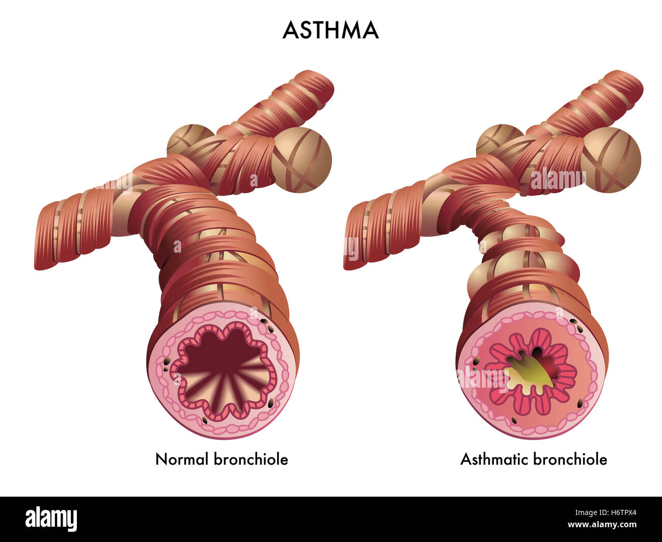 an introduction to bronchitis an inflammation of the bronchi Allergic bronchitis causes, symptoms and cure: chronic bronchitis is not caused by a bacterial infection it is a long-term inflammation or irritation of the.
