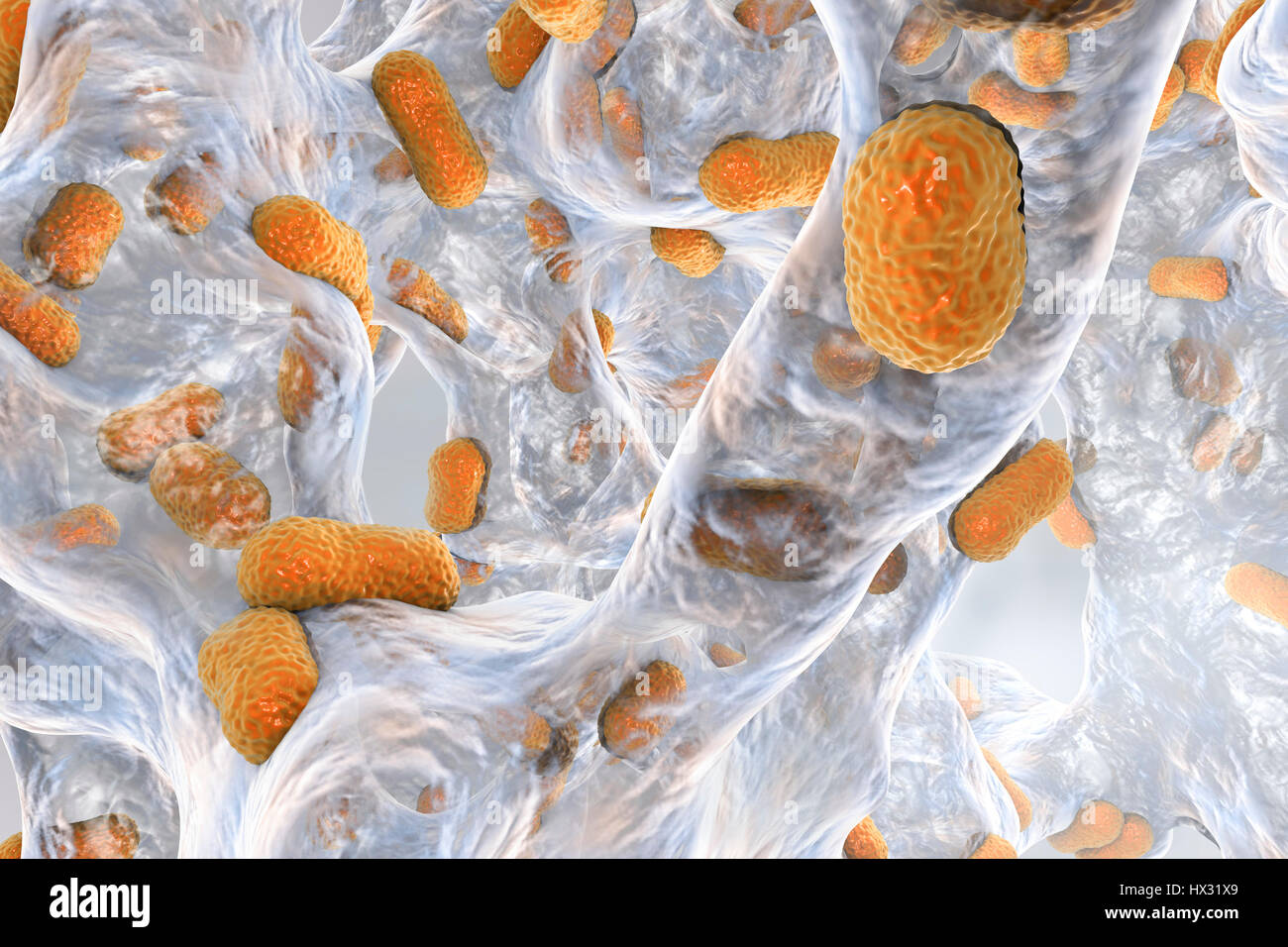 List of Bacterial Diseases, Infections Acinetobacter baumannii symptoms pictures