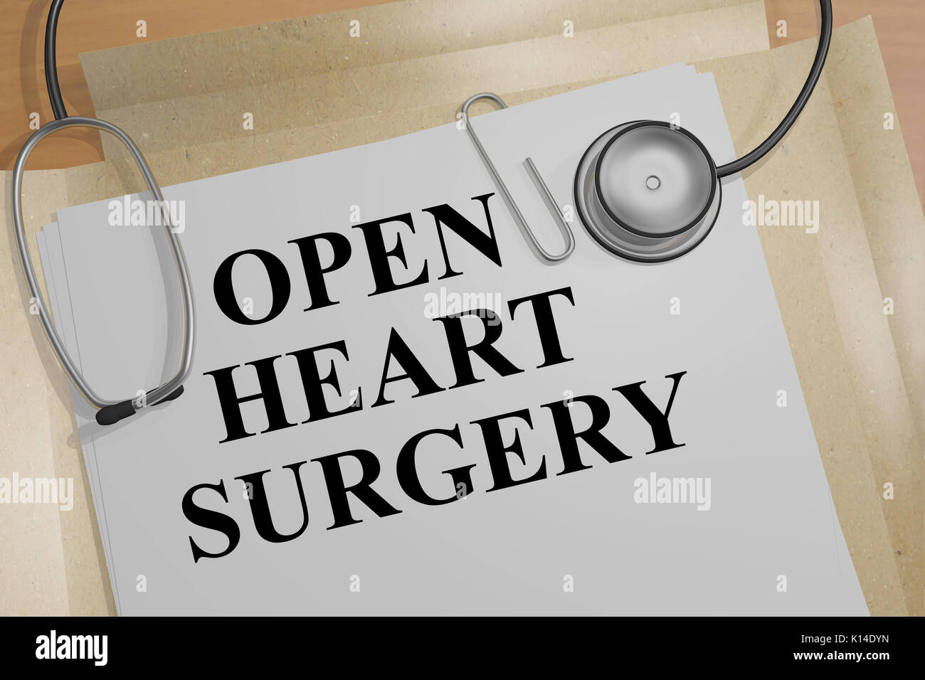 3D illustration of 'OPEN HEART SURGERY' title on a medical document - Stock Image