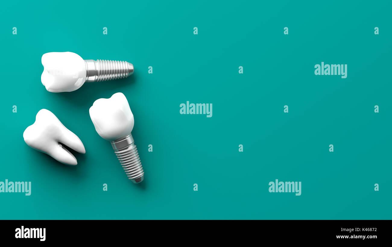 Implants Dental Stock Photos & Implants Dental Stock ... Dental Implant Background