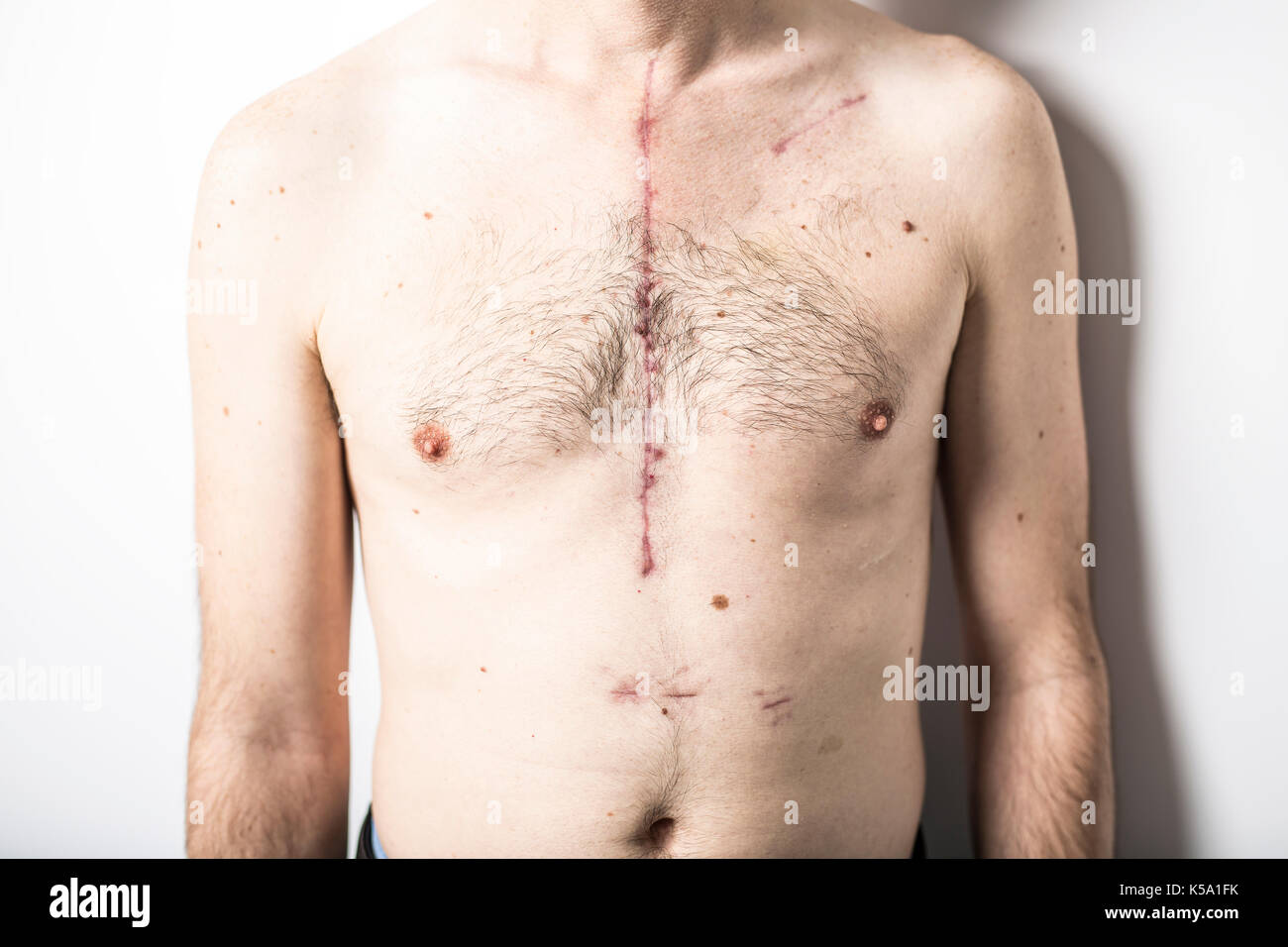 Some Scar from open heart surgery in studio - Stock Image