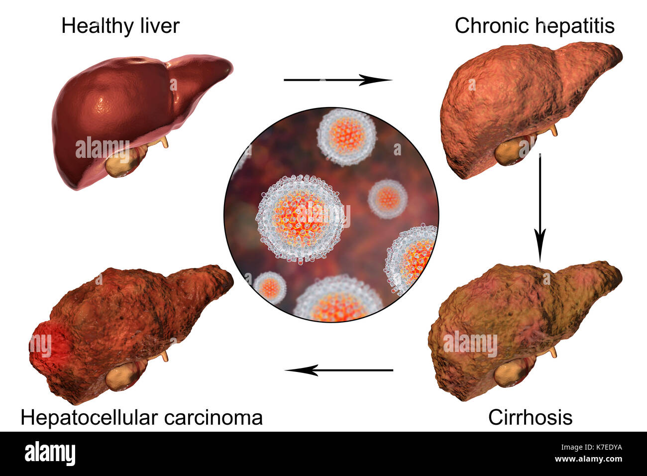 liver disease hepatitis c essay Hepatitis research papers report that the disease can come in the forms of hepatitis a, hepatitis b or hepatitis c get research paper relief at paper masters.