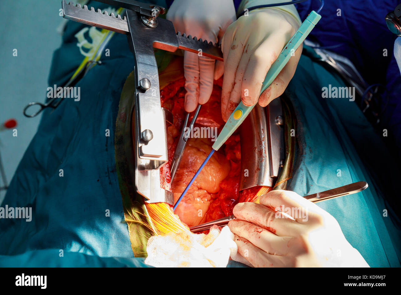 heart surgery The heart surgery forum® is an open access, peer-reviewed, indexed scientific journal for cardiothoracic surgery professionals the journal utilizes electronic.