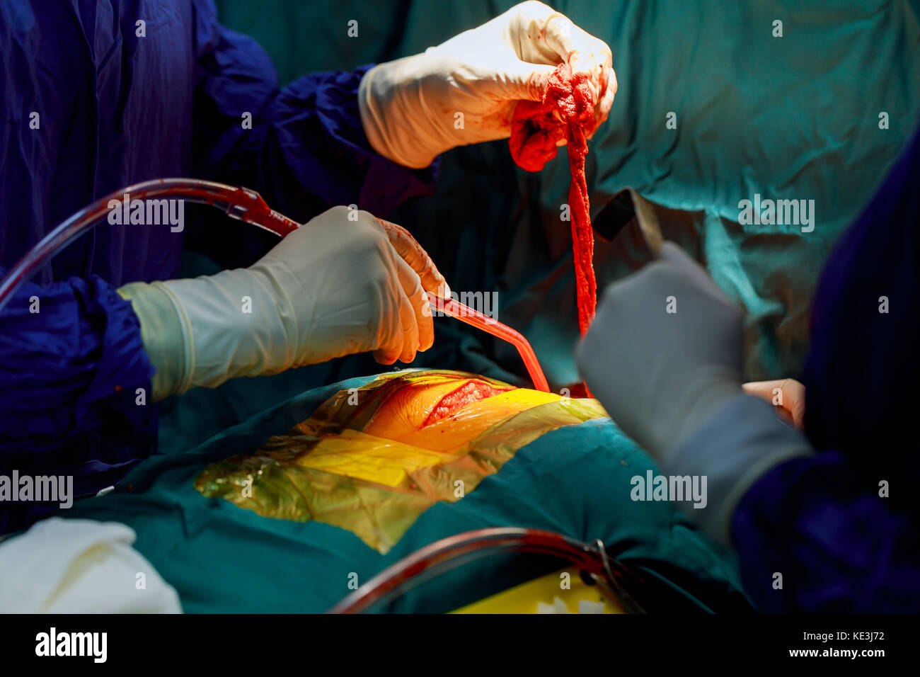 chest during heart surgery Teamwork surgeons during open-heart surgery - Stock Image