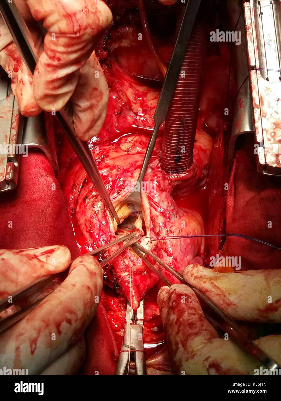 Surgeon hands are tying a knot during the open heart procedure chest during heart surgery - Stock Image
