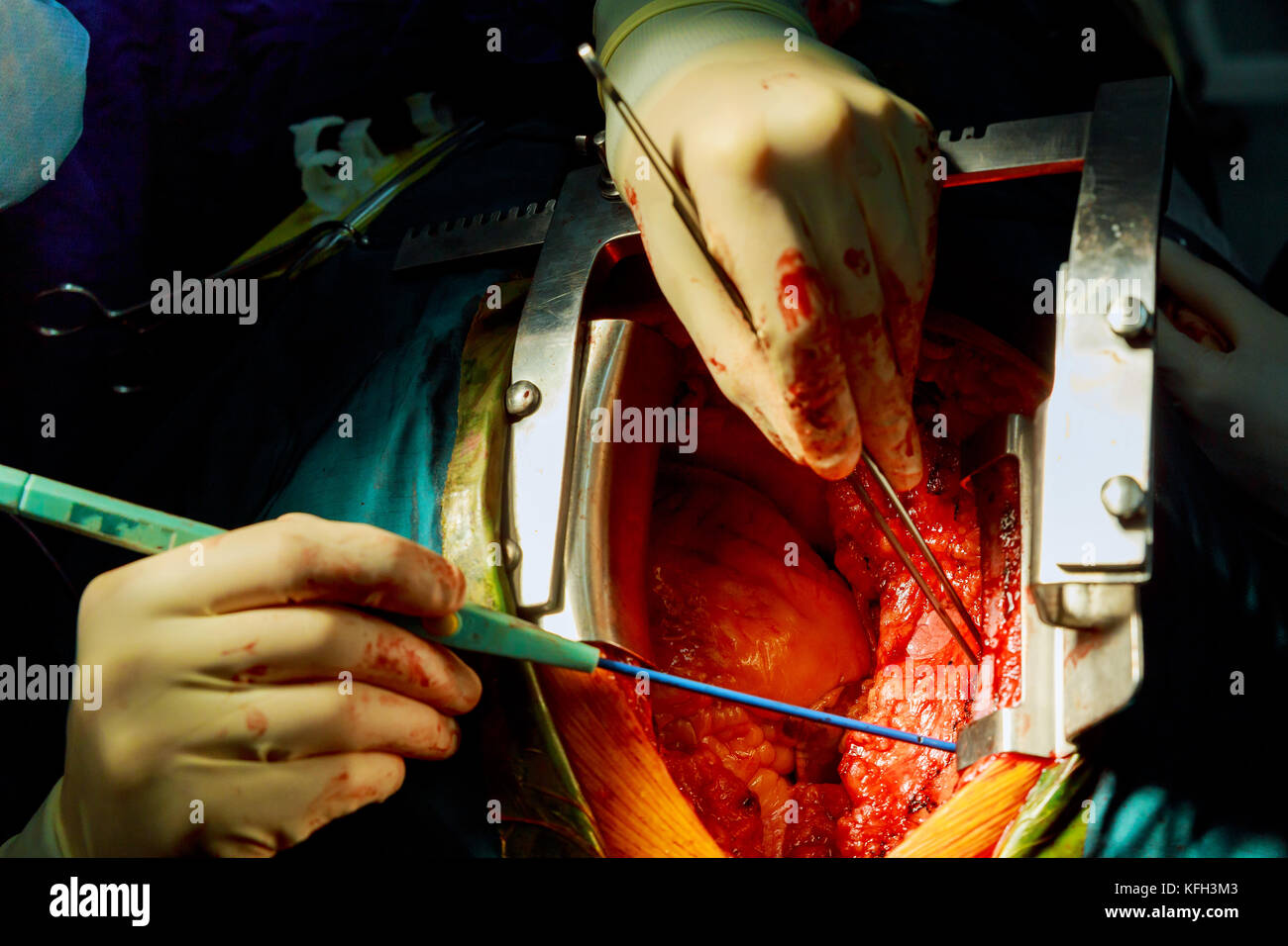 Surgeon doctor operating wearing lamp lighting electric cautery and flex clamp, heart surgery intervention close - Stock Image
