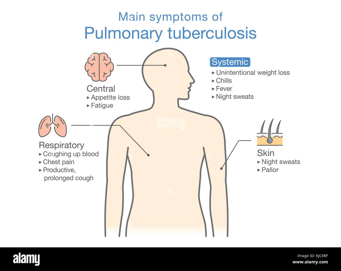 pulmonary tuberculosis The new engl and journal of medicine n engl j med 3688 nejmorg february 21, 2013 745 review article current concepts tuberculosis alimuddin zumla, md, phd, mario raviglione, md.