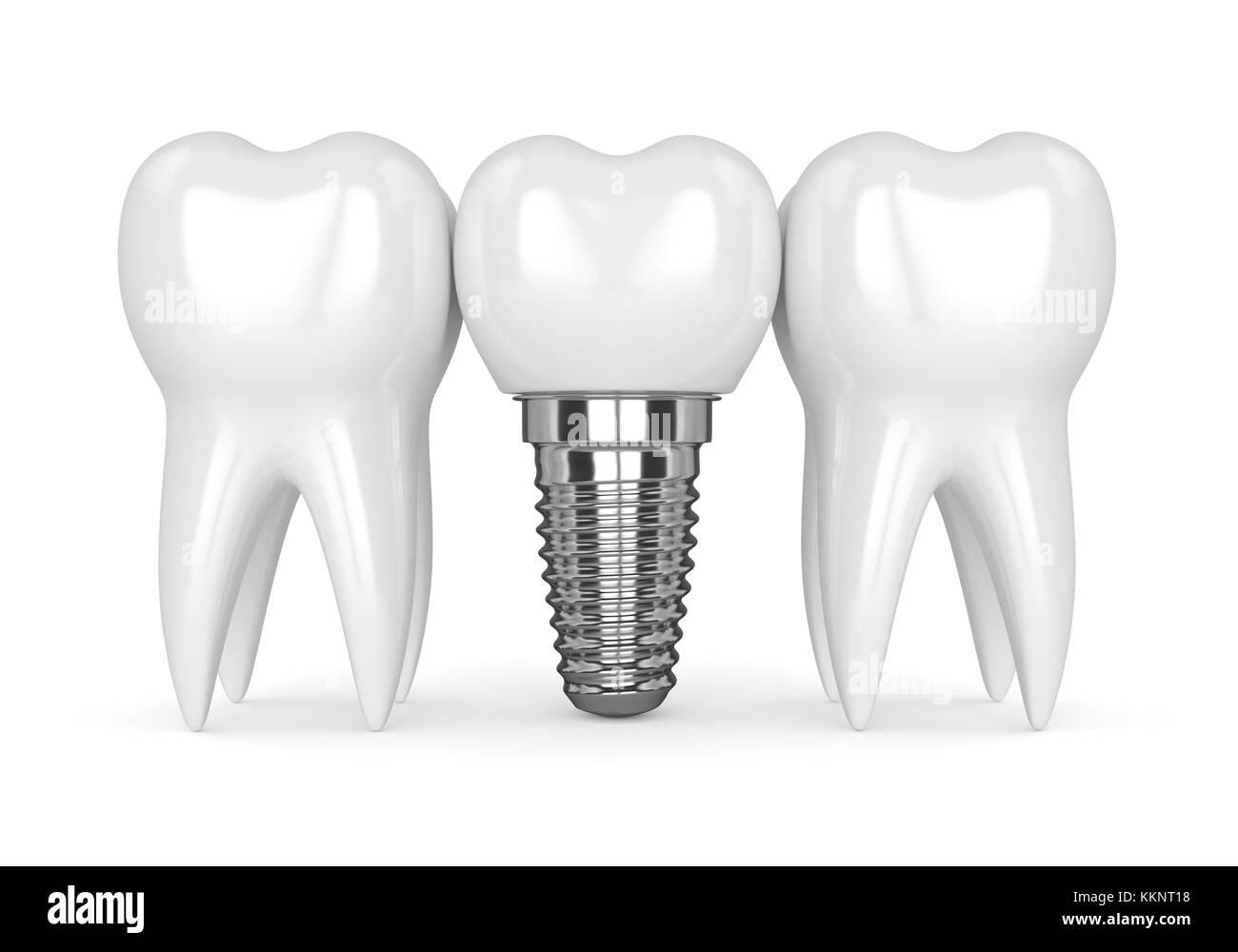 Implant Black and White Stock Photos & Images - Alamy Dental Implant Background