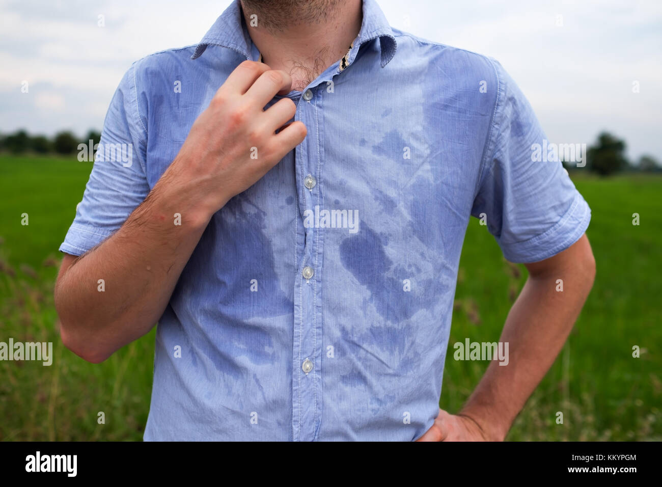 how to stop excessive sweating under armpits