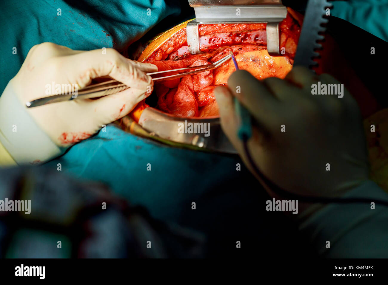 Doctor holding surgical instruments during medical procedure at clinic Teamwork surgeons during open-heart surgery - Stock Image