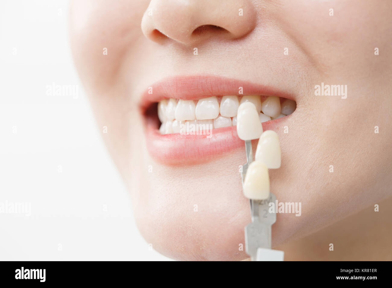 Young women tooth beauty - Stock Image