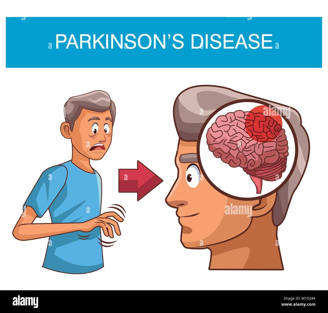 Parkinson: Parkinson Brain Stock Photos & Parkinson Brain Stock
