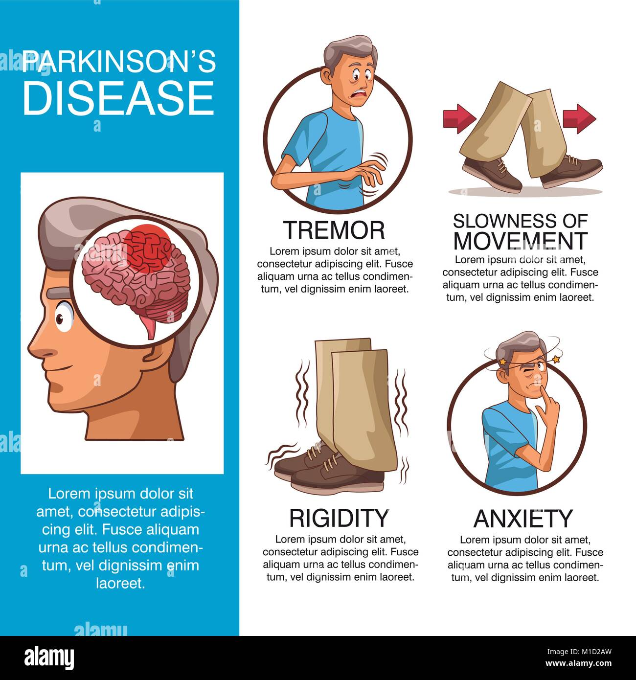 an introduction to the issue and the affects of parkinsons disease The effects of highly challenging balance training in elderly with parkinson's disease.