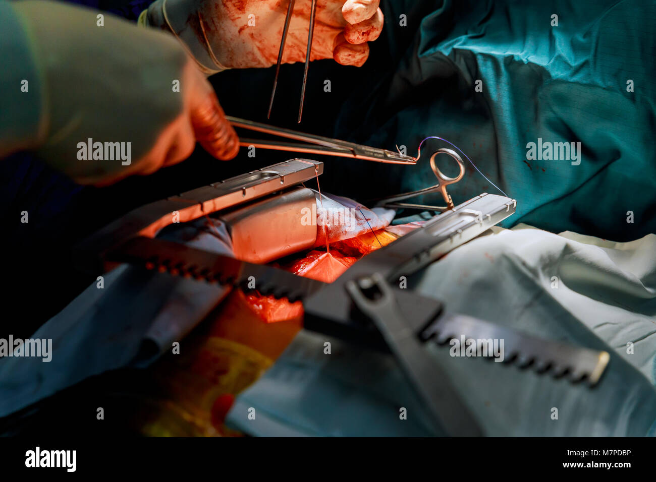 Tricuspid valve replacement with bioprosthetic valve surgical instruments for open heart surgery - Stock Image