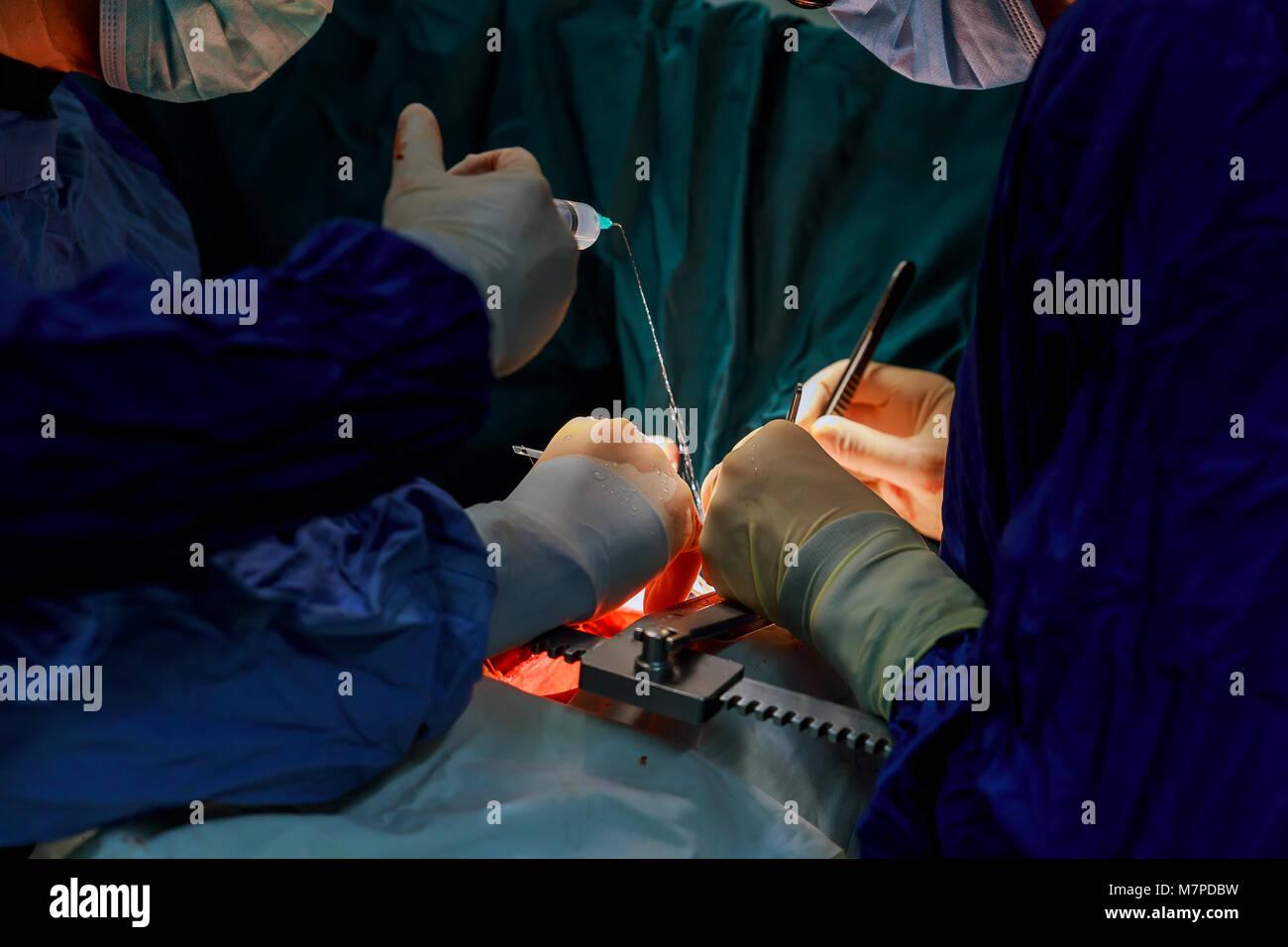 Heart surgery. Open heart surgery. Coronary artery bypass surger in operating room - Stock Image