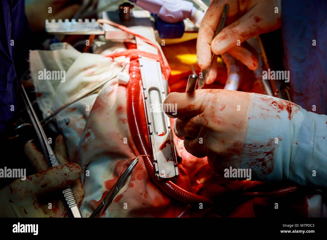 open heart surgery for coronary surgery Surgeon Inserting Tube Into Patient During Surgery - Stock Image