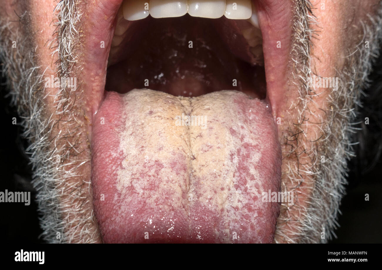 cream-white-coating-on-tongue-MANWFN.jpg
